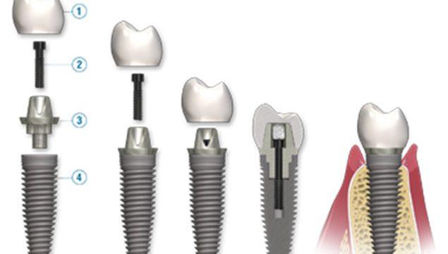 Partes de un implante dental de titanio con funda.