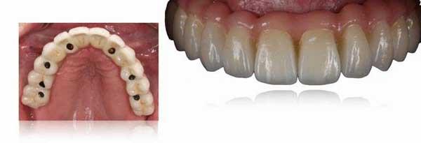 Prótesis fija sobre implantes dentales