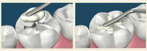 Empaste dental de composite.