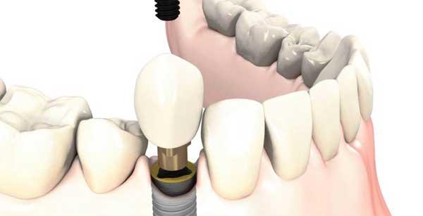 prótesis dentales sobre implante