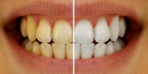 Dientes amarillos y dientes después de un tratamiento dental para solucionarlo.