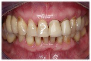 paciente con periodontitis donde la encía ya ha bajado porque hay pérdida de hueso y no tiene donde apoyarse.