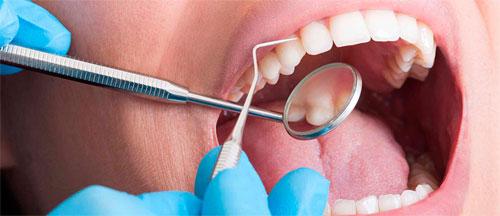 Revisión dental.