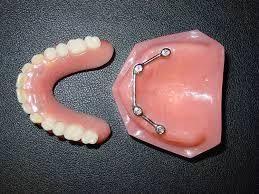 protesis implantes dentales