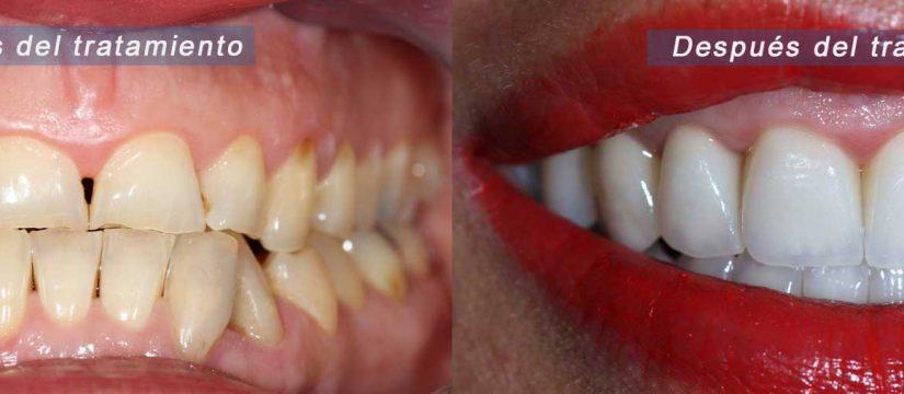 Antes y después de una paciente con rehabilitación completa con coronas dentales por desgaste severo.