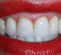 Rehabilitación ral completa con coronas en todos los dientes, disilicato de litio en los dientes de delante y monolíticas de circonio en los de detrás.