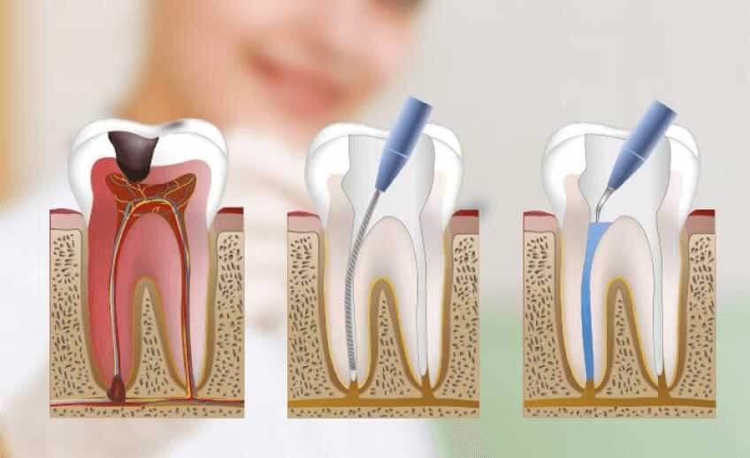 Proceso de endodoncia o matar el nervio.