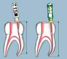 Limpieza del nervio durante la endodoncia (matar el nervio).