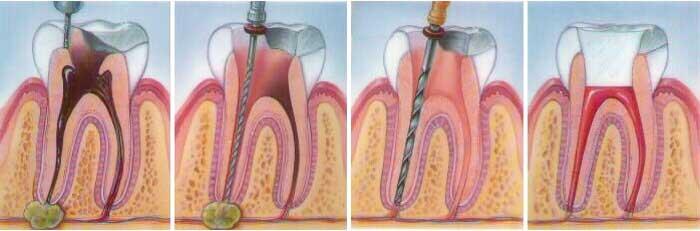 desvitalización del diente