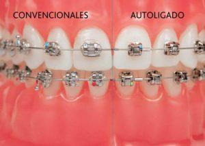 Comparación brackets autoligables y brackets metálicos con gomas