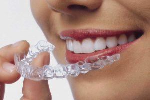 Férula o alineador de ortodoncia invisible.