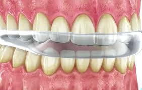 Férula dental de descarga para el tratamiento del bruxismo