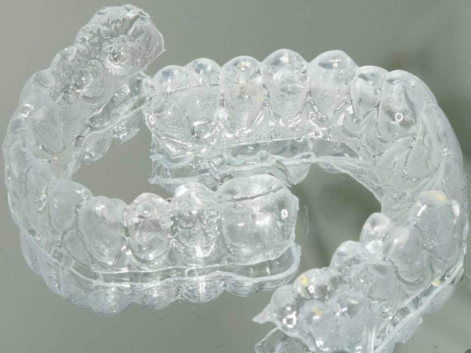 Férula de blanqueamiento dental