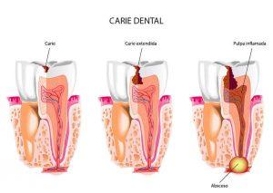 Progreso de caries dental