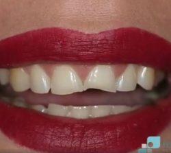 Antes de estética dental